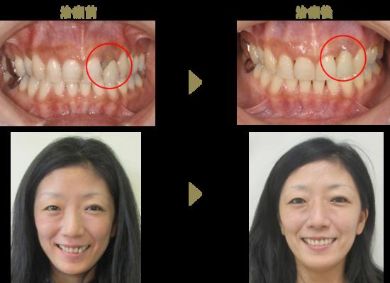 Case1(期間2ヶ月)のイメージ