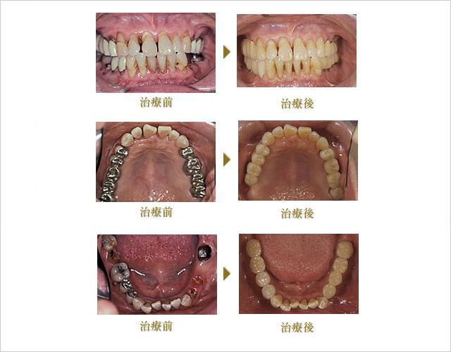 Case1(長期症例)のイメージ