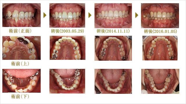 Case2 矯正+補綴 (治療期間1年)のイメージ