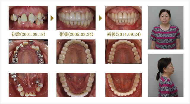 Case3 歯周病治療+矯正+インプラント+補綴 (治療期間3年)のイメージ