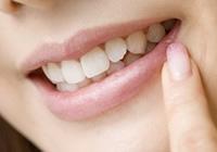 当院の審美歯科のイメージ