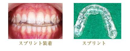 顎関節症のプロセスのイメージ