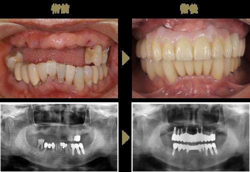 メタルボンド+部分矯正(治療期間 5ヶ月)のイメージ
